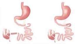 جابجایی ایلئوم در درمان دیابت