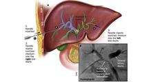 جراحی کلهسیستکتومی با بررسی کلانژیوگرافی و کولدوکوسکوپی