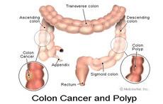 Intestine Cancer Surgery