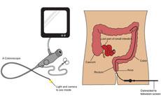 Flexible Endoscopy and Colonoscopy