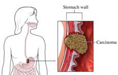 Gastrointestinal Cancer Surgery