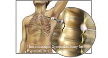 قطع عصب سمپاتیک گردنی – سینهای جهت درمان تعریق شدید دستها